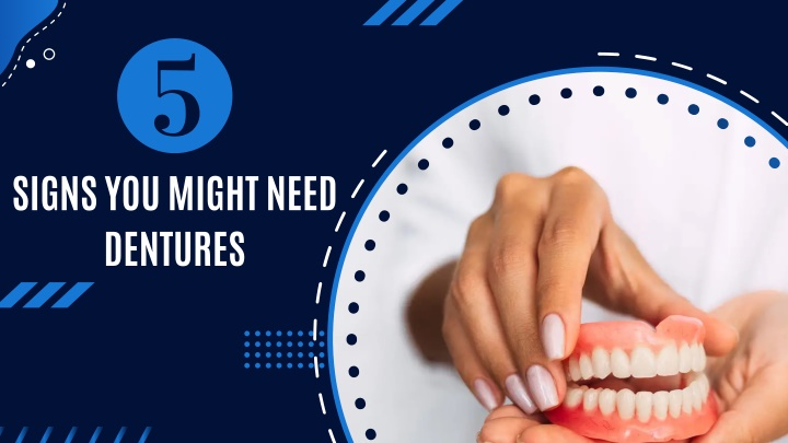 signs you might need dentures n.
