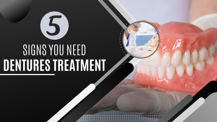 signs you need dentures treatment n.