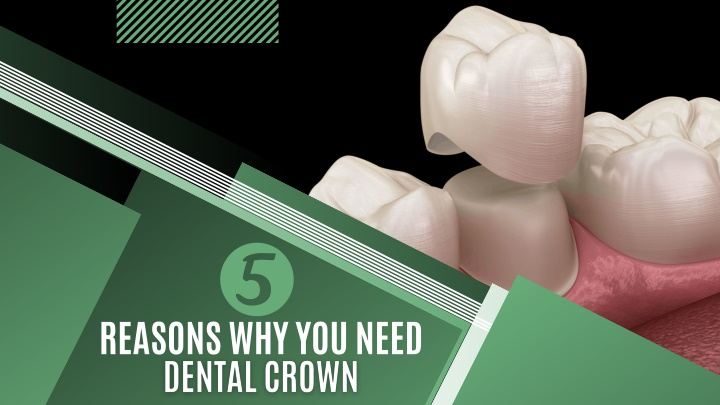 5 Reasons Why You Need Dental Crown