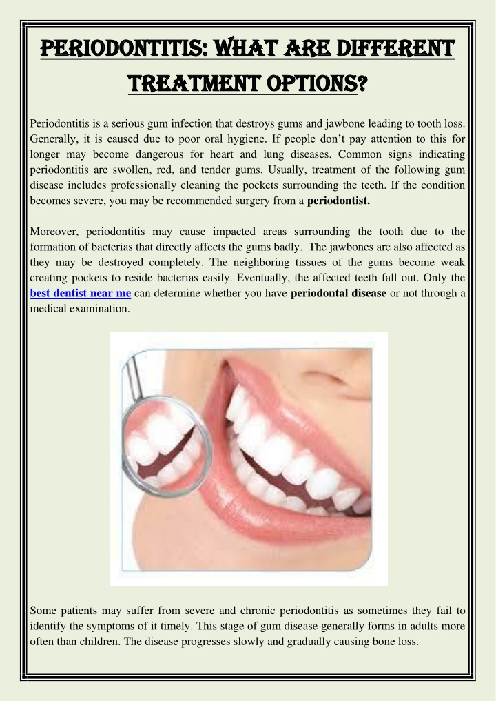 periodontitis what are different periodontitis n.