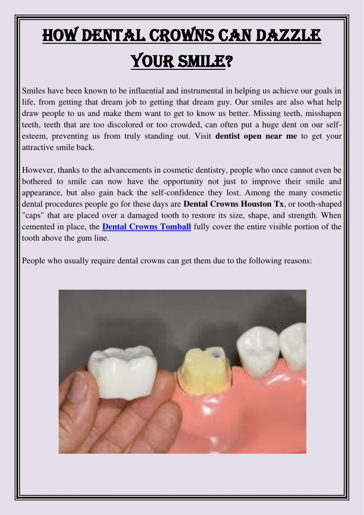 how dental crowns can dazzle how dental crowns n.